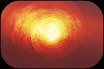 circular orange field-sun-like center