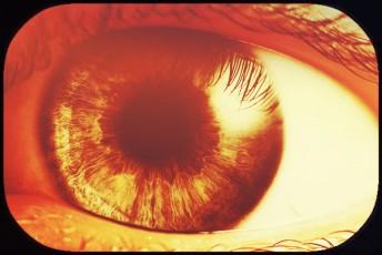 eyeball closeup